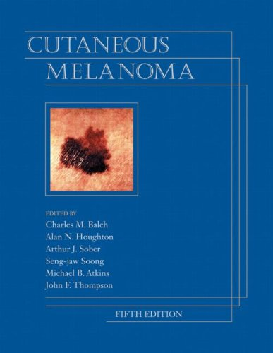 Cutaneous Melanoma: Balch, Charles M. (Editor)