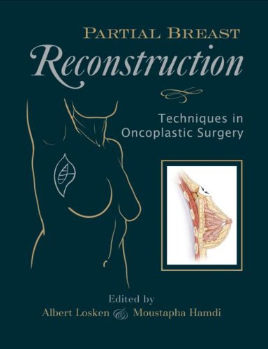 9781576262832: Partial Breast Reconstruction: Techniques in Oncoplastic Surgery