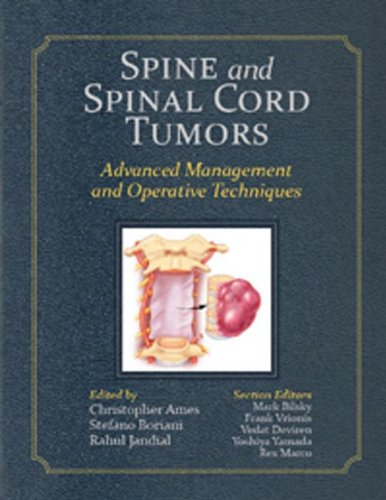 Spine and Spinal Cord Tumors: Advanced Management and Operative Techniques