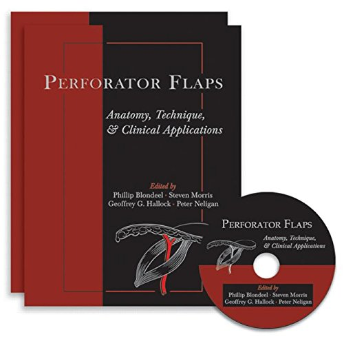 Perforator Flaps: Anatomy, Technique, & Clinical Applications, 2nd Edition: Edited by Phillip N...
