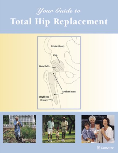 9781577491644: Your Guide to Total Hip Replacement
