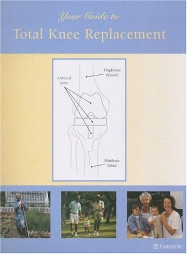 9781577491651: Your Guide to Total Knee Replacement