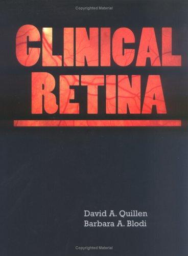9781579472849: Clinical Retina (Book ) [With CDROM]