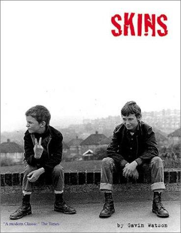 Skins: Watson, Gavin