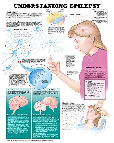 9781587793356: Understanding Epilepsy Anatomical Chart