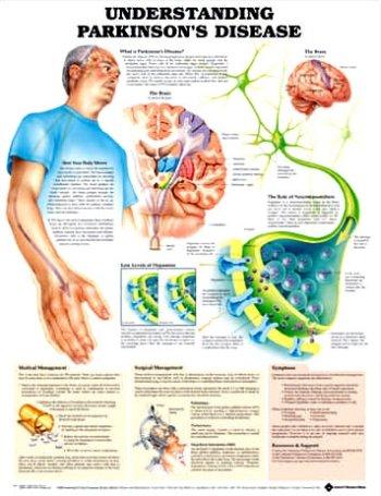 9781587793547: Understanding Parkinson's Disease Anatomical Chart