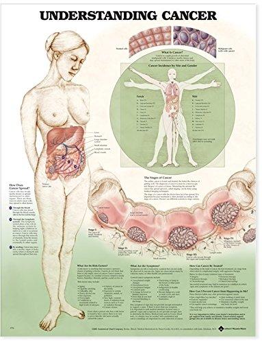 9781587797613: Understanding Cancer Anatomical Chart