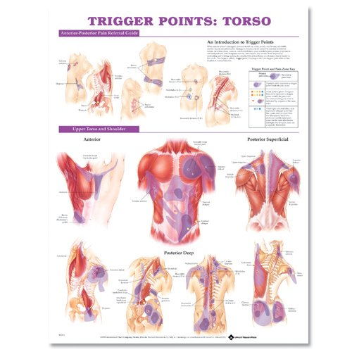 9781587798627: Trigger Points: Torso