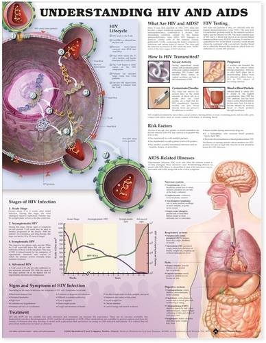 Understanding HIV and AIDS Anatomical Chart in Spanish (Entendiendo Que Son el VIH y el SIDA): ...