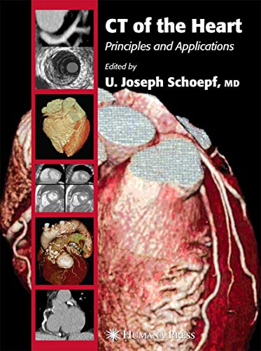 9781588293039: CT of the Heart: Principles and Applications (Contemporary Cardiology)