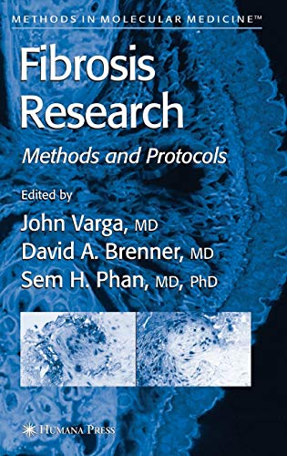 9781588294791: Fibrosis Research: Methods and Protocols (Methods in Molecular Medicine)