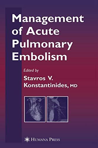 9781588296443: Management of Acute Pulmonary Embolism (Contemporary Cardiology)