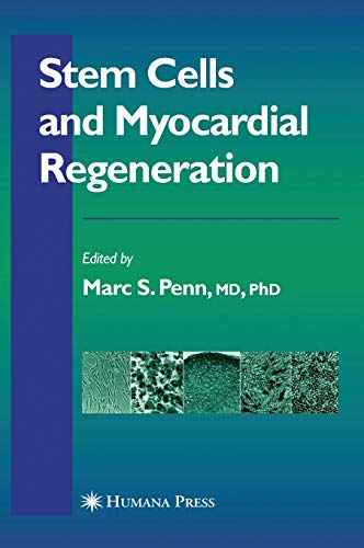 9781588296641: Stem Cells And Myocardial Regeneration (Contemporary Cardiology)