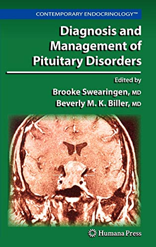 9781588299222: Diagnosis and Management of Pituitary Disorders (Contemporary Endocrinology)