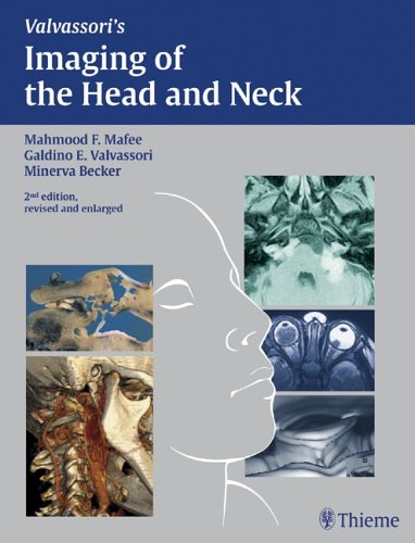 Imaging of the Head and Neck: Mahmood F. Mafee;