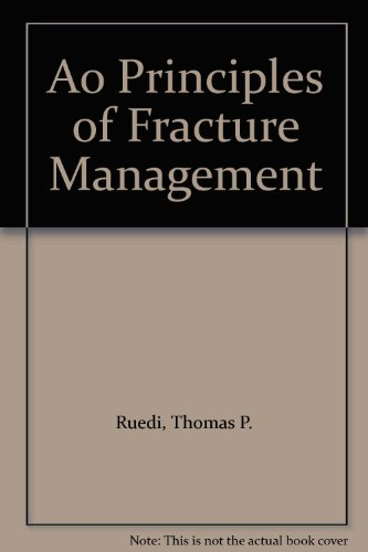 9781588900982: Ao Principles of Fracture Management