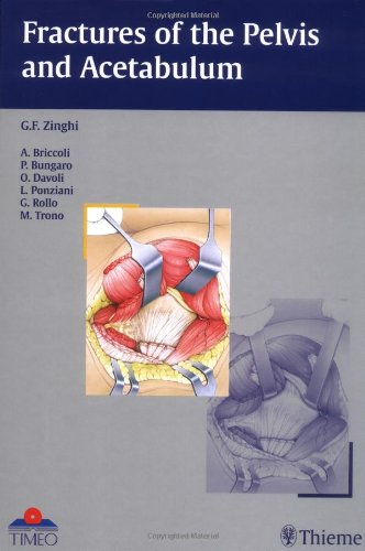 Fractures of the Pelvis and Acetabulum: Gianfranco Zinghi