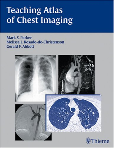 9781588902306: Teaching Atlas of Chest Imaging