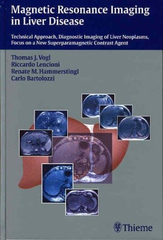 9781588902368: Magnetic Resonance Imaging in Liver Disease: Technical Approach, Diagnostic Imaging of Liver Neoplasms, Focus on a New Superparamagnetic Contrast Agent