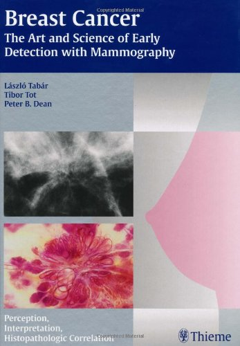 9781588902597: Breast Cancer - The Art and Science of Early Detection with Mammography: Perception, Interpretation, Histopathologic Correlation