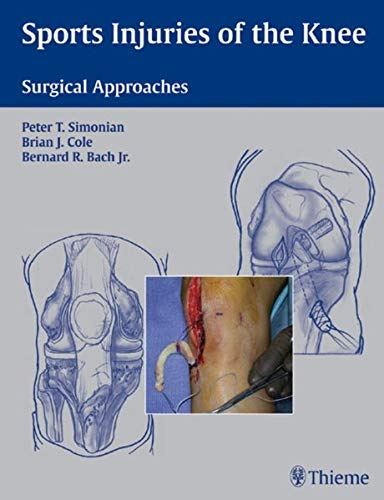 9781588903068: Sports Injuries of the Knee: Surgical Approaches
