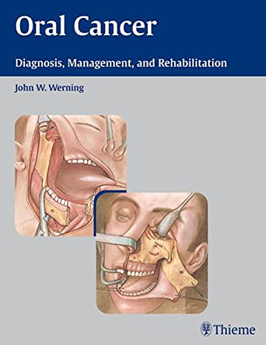 9781588903099: Oral Cancer: Diagnosis, Management, and Rehabilitation