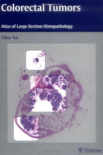 9781588903846: Colorectal Tumors: Atlas of Large Section Histopathology