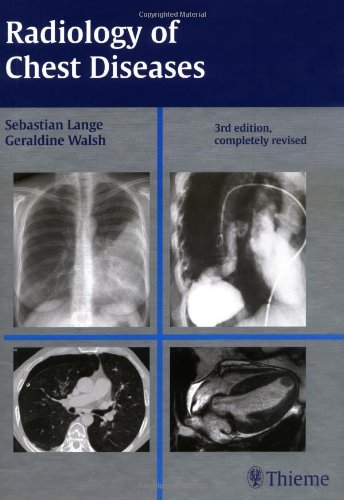 9781588904478: Radiology of Chest Diseases