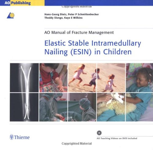 9781588904850: Elastic Stable Intramedullary Nailing (ESIN) in Children (AO Manual of Fracture Management Series)
