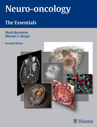 9781588904973: Neuro-oncology: The Essentials