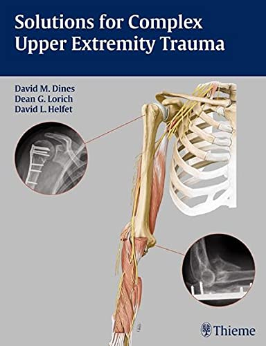 9781588905048: Solutions for Complex Upper Extremity Trauma