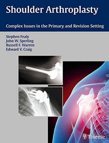 9781588905055: Shoulder Arthroplasty: Complex Issues in the Primary and Revision Setting