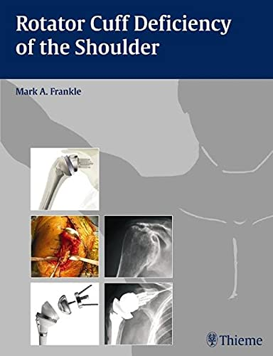 9781588905062: Rotator Cuff Deficiency of the Shoulder