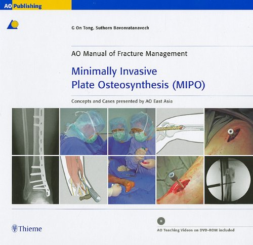 9781588905444: Minimally Invasive Plate Osteosynthesis (MIPO): Concepts and cases presented by the AO East Asia (Ao Manual of Fracture Management)