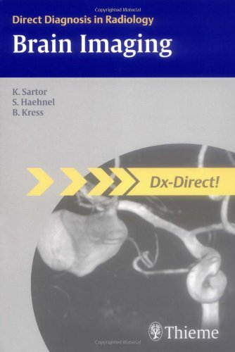 9781588905703: Brain Imaging (Direct Diagnosis in Radiology: DX-Direct!)