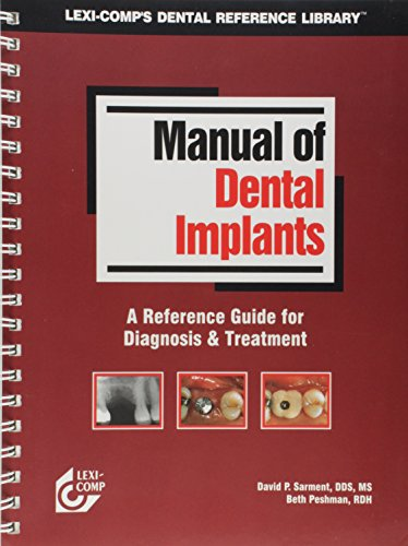 9781591950615: Lexi-Comp's Manual of Dental Implants