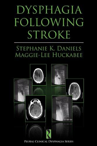 9781597561969: Dysphagia Following Stroke (Plural Clinical Dysphagia Series)