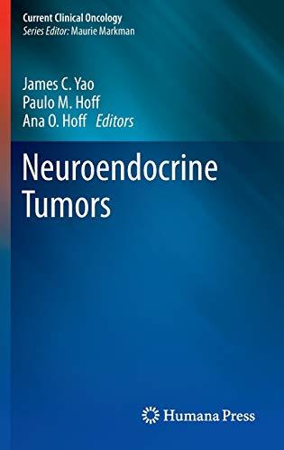 Neuroendocrine Tumors: James C. Yao