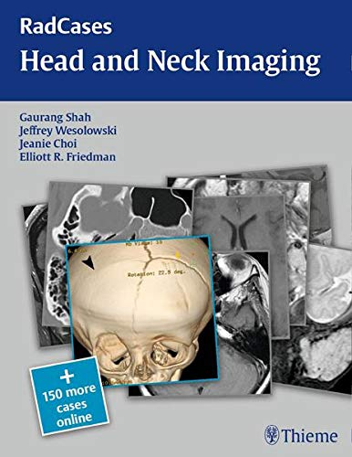 9781604061932: RadCases Head and Neck Imaging