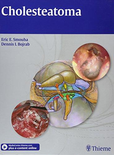 Cholesteatoma: Eric Smouha; Dennis Bojrab