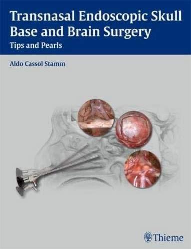 9781604063103: Transnasal Endoscopic Skull Base and Brain Surgery: Tips and Pearls