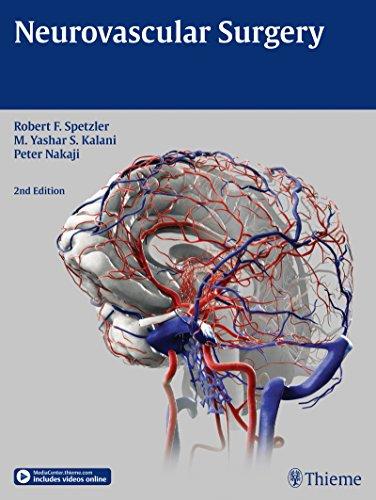 9781604067590: Neurovascular Surgery