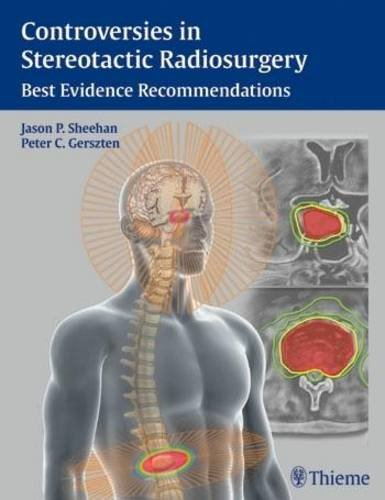 9781604068412: Controversies in Stereotactic Radiosurgery: Best Evidence Recommendations
