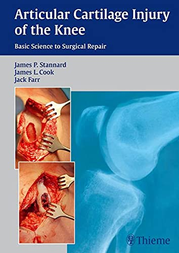 9781604068580: Articular Cartilage Injury of the Knee: Basic Science to Surgical Repair