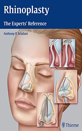 Rhinoplasty: The Experts' Reference (Hardcover): Anthony P. Sclafani