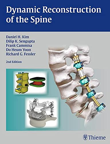 Dynamic Reconstruction of the Spine: Daniel H. Kim