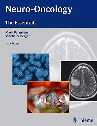 9781604068832: Neuro-Oncology: The Essentials