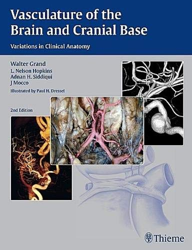 9781604068856: Vasculature of the Brain and Cranial Base