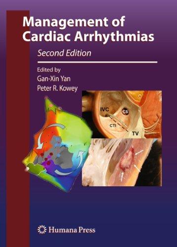 9781607611608: Management of Cardiac Arrhythmias (Contemporary Cardiology)
