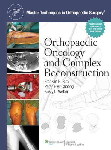 9781608310432: Master Techniques in Orthopaedic Surgery: Orthopaedic Oncology and Complex Reconstruction
